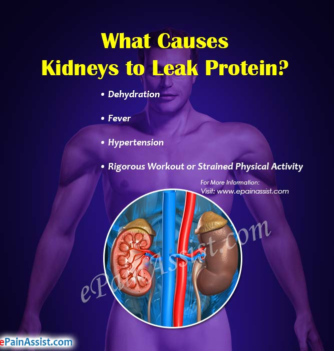 What Causes Kidneys To Leak Protein How To Stop It