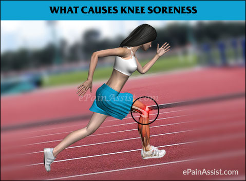 What is Sore Knees?