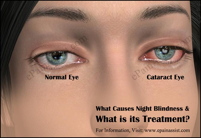 What Causes Night Blindness and What is its Treatment?