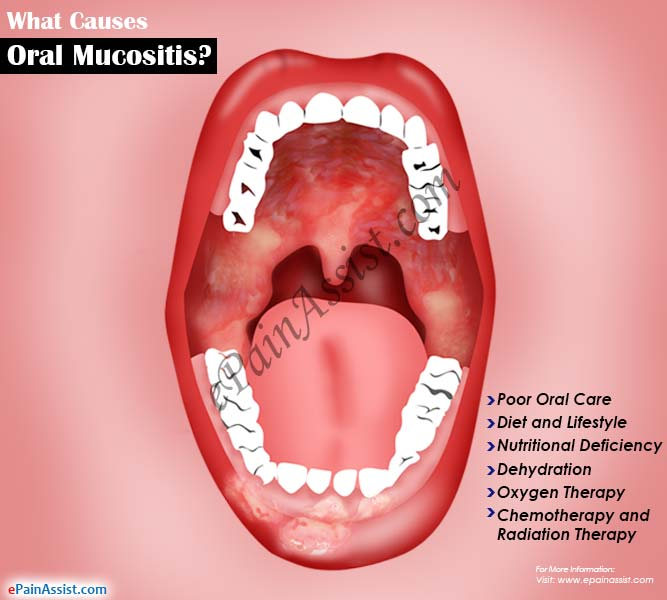 What Causes Oral Mucositis?