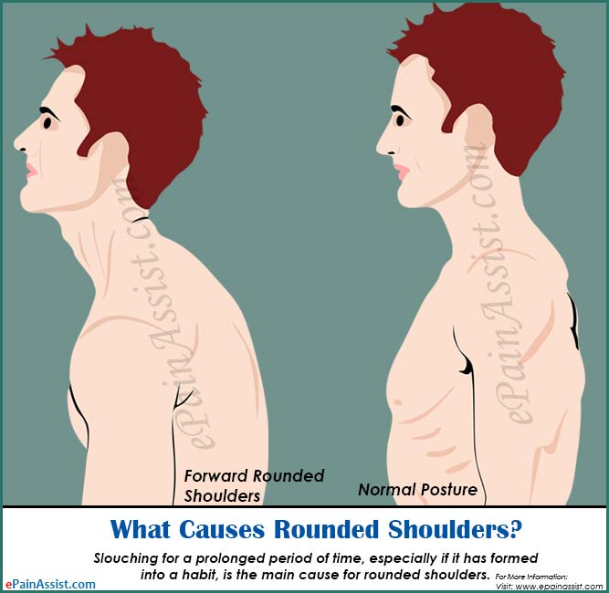 What Causes Rounded Shoulders?