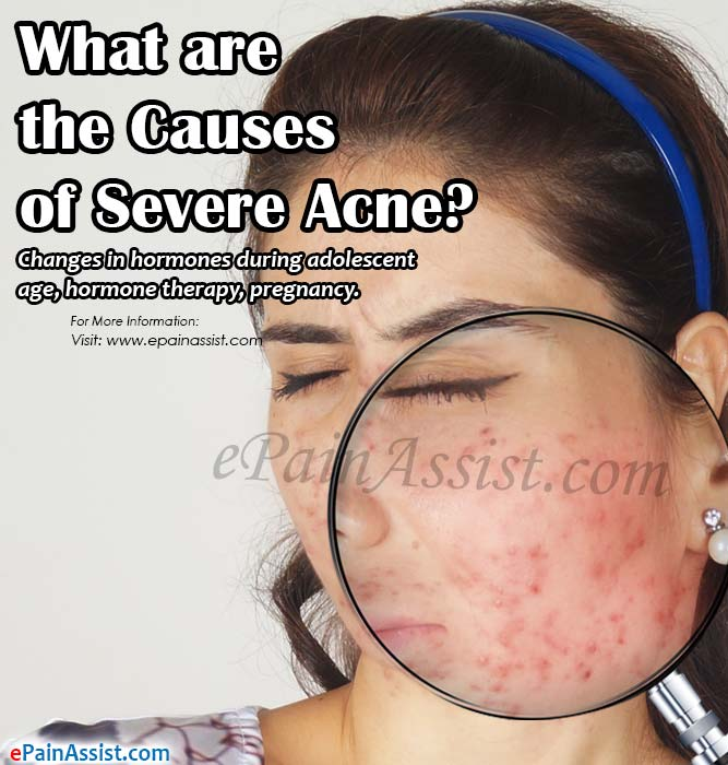 What are the Causes of Severe Acne?