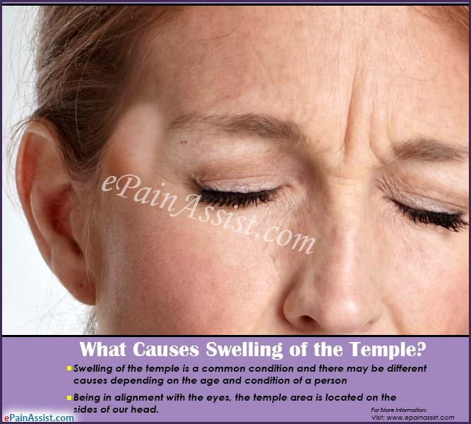 What Causes Swelling Of The Temple How Is It Treated