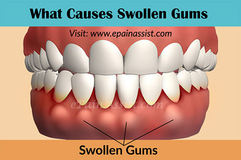 What Causes Swollen Gums & Home Remedies to Get Rid of it!