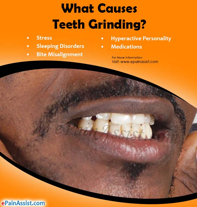 What Causes Teeth Grinding?