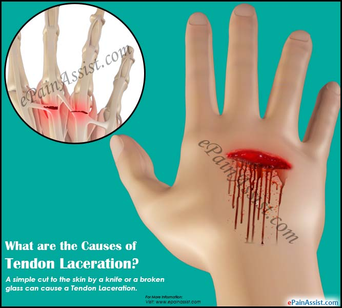 What are the Causes of Tendon Laceration?