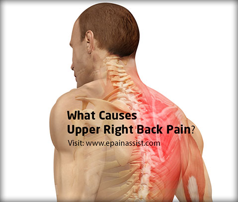 Upper Right Back Pain Causes Symptoms Treatment Diagnosis