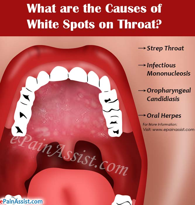 What are the Causes of White Spots on Throat?
