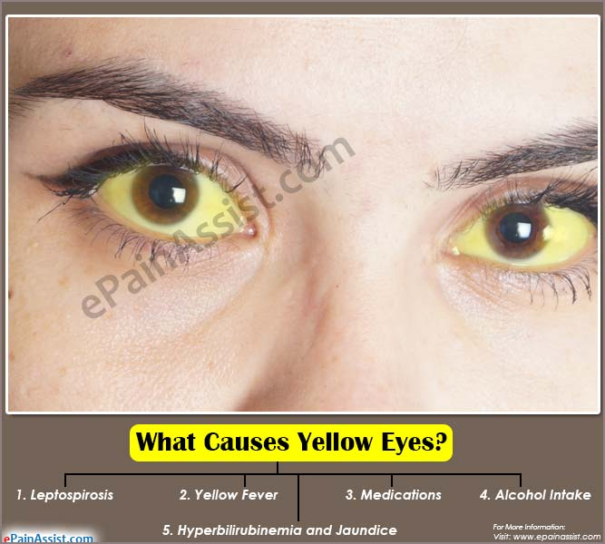 yellow jaundice adults Causes
