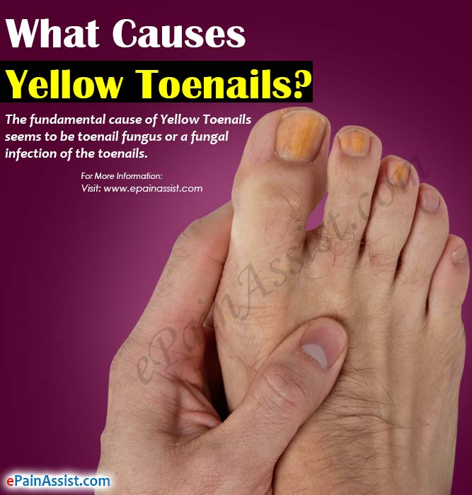 What Causes Yellow Toenails & Home Remedies to Get Rid of it?