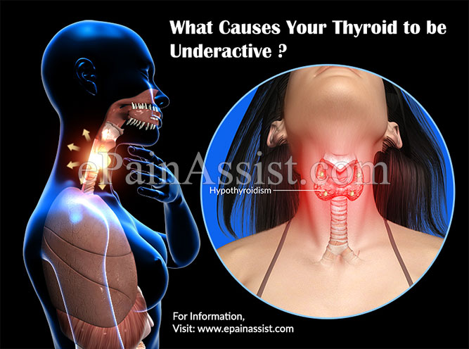What Causes Your Thyroid to be Underactive (Hypothyroidism)?