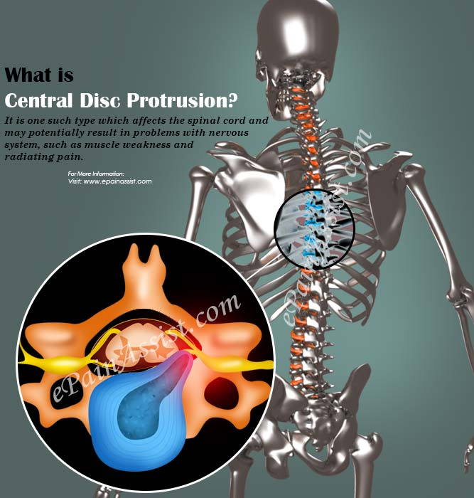 What is Central Disc Protrusion?