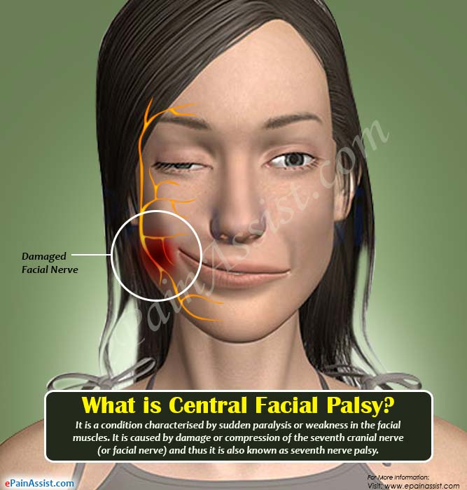 Facial paralysis and neuralgia