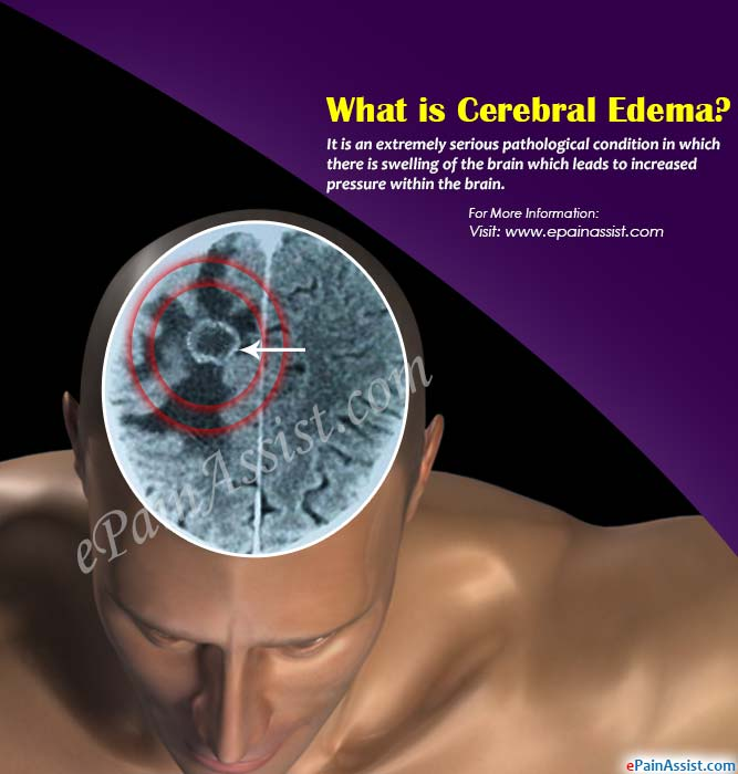 What is Cerebral Edema?