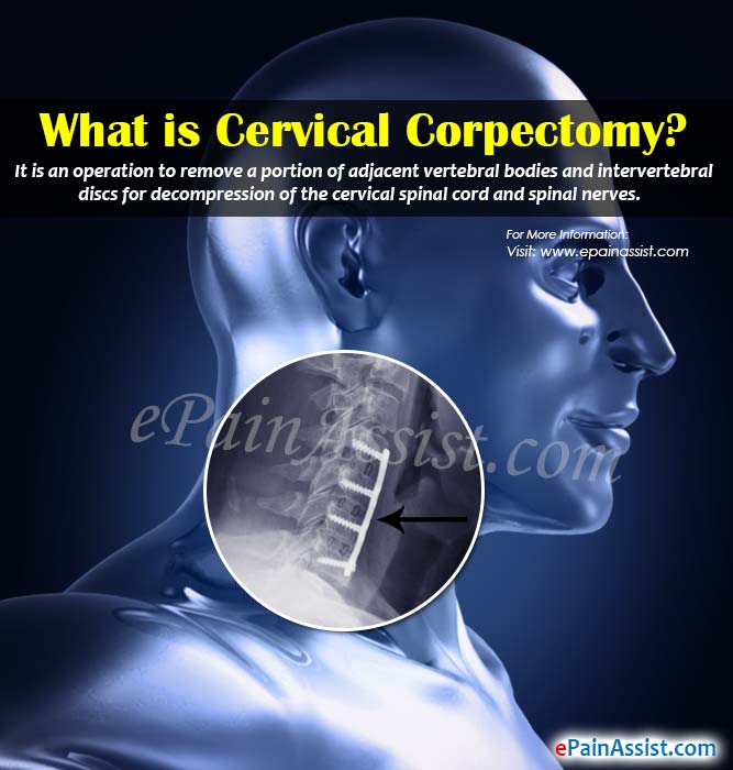 What is Cervical Corpectomy?