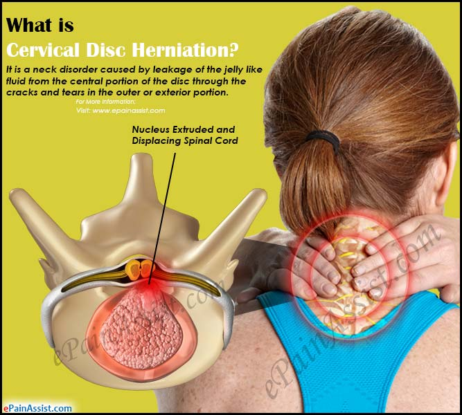 what is cervical disc herniation how is it treated