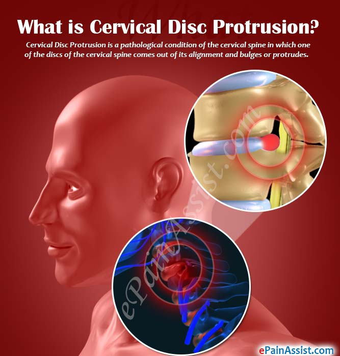 What is Cervical Disc Protrusion?