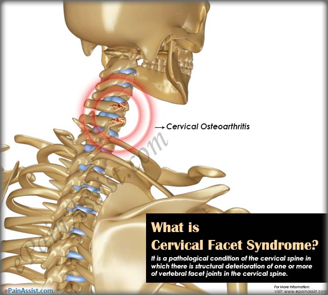What is Cervical Facet Syndrome?