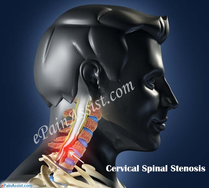 What is Cervical Spinal Stenosis?