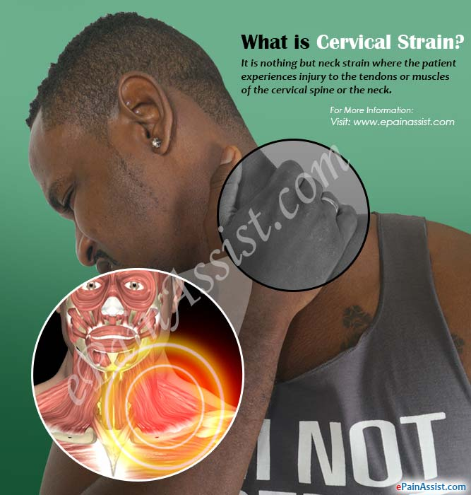 What is Cervical Strain?