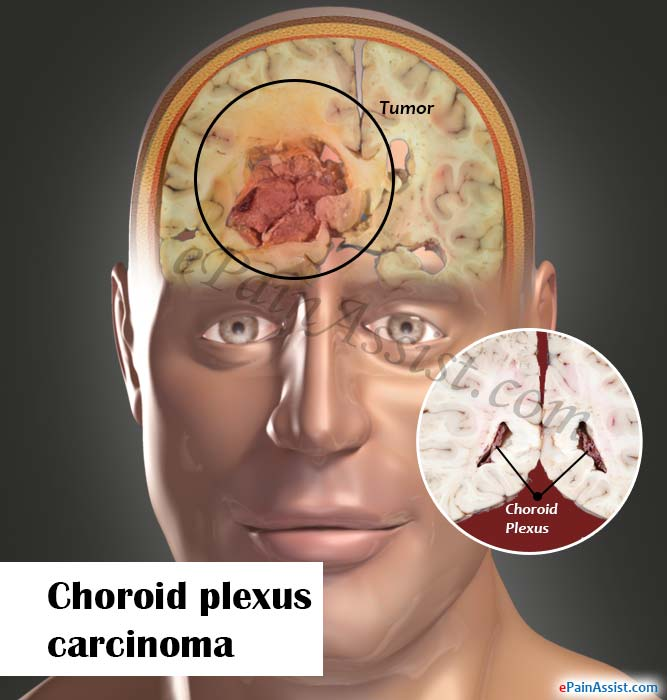 What Is Choroid Plexus Carcinoma And How Is It Treated