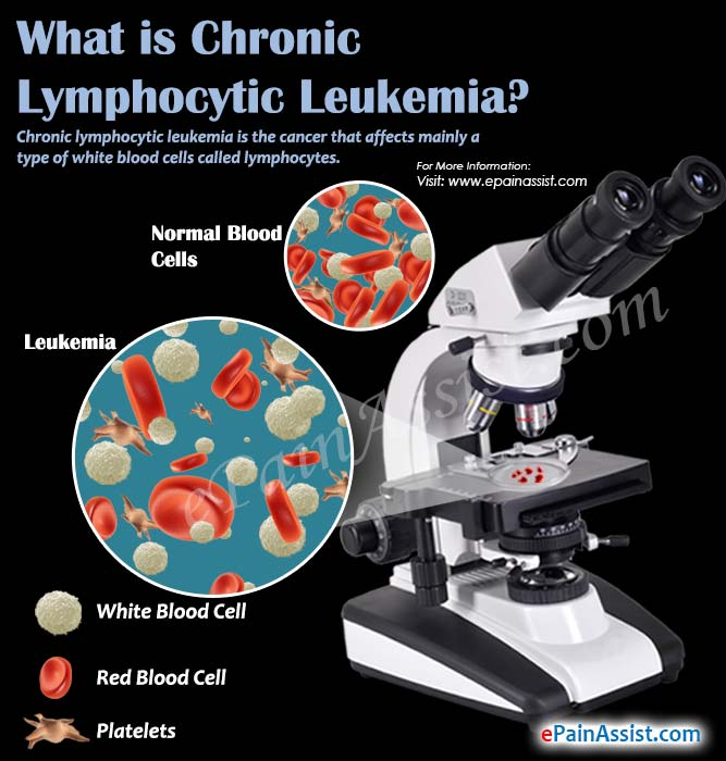 What is Chronic Lymphocytic Leukemia?