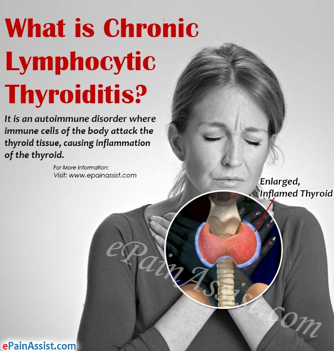What is Chronic Lymphocytic Thyroiditis?