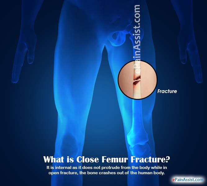 What is Close Femur Fracture?