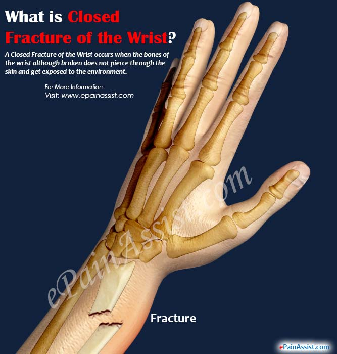 What is Closed Fracture of the Wrist