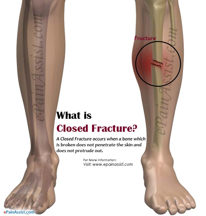 What is Closed Fracture