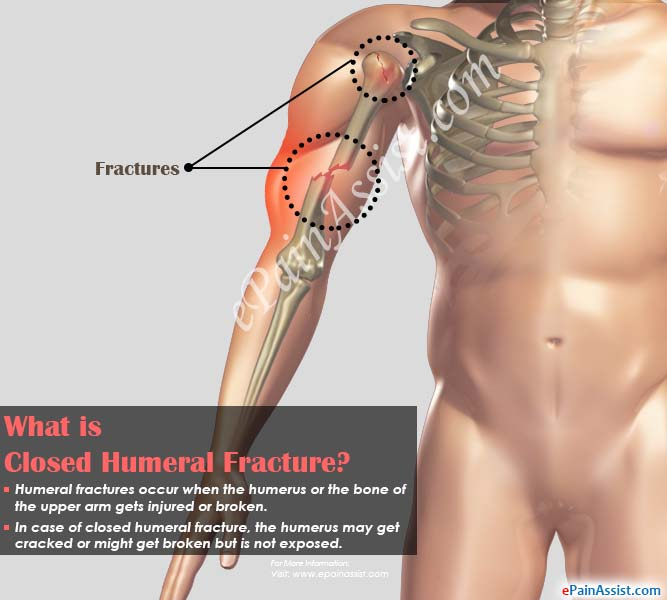 What is Closed Humeral Fracture?