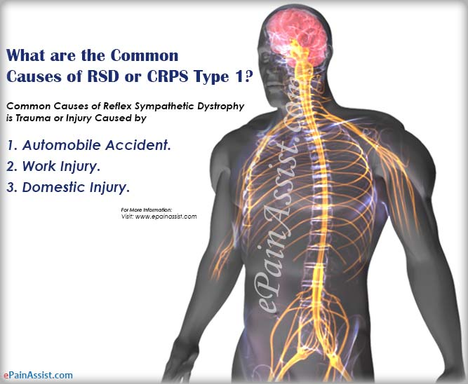 What Are The Common Causes Of Reflex Sympathetic Dystrophy (RSD) or Complex Regional Pain Syndrome (CRPS Type 1)?