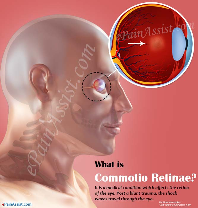 What is Commotio Retinae?