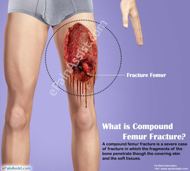 What is Compound Femur Fracture?