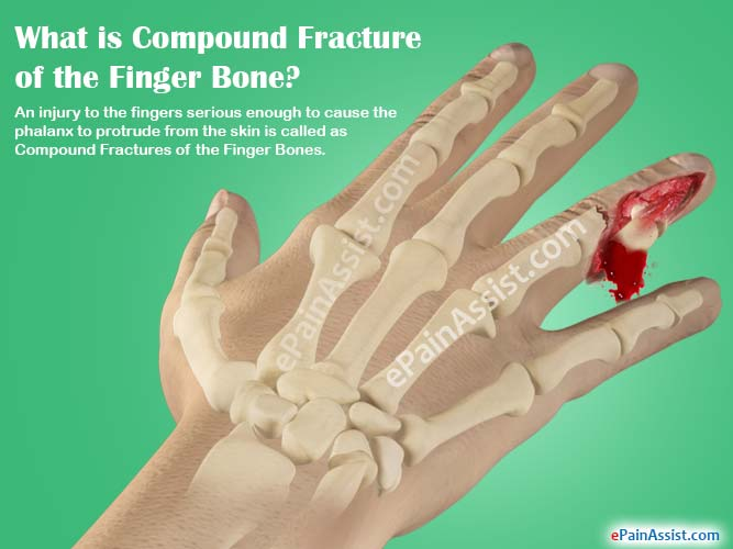 Treatment for broken thumb bones the answer