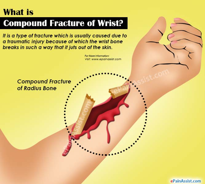 compound fracture of wrist|causes|symptoms|treatment|recovery, Human Body