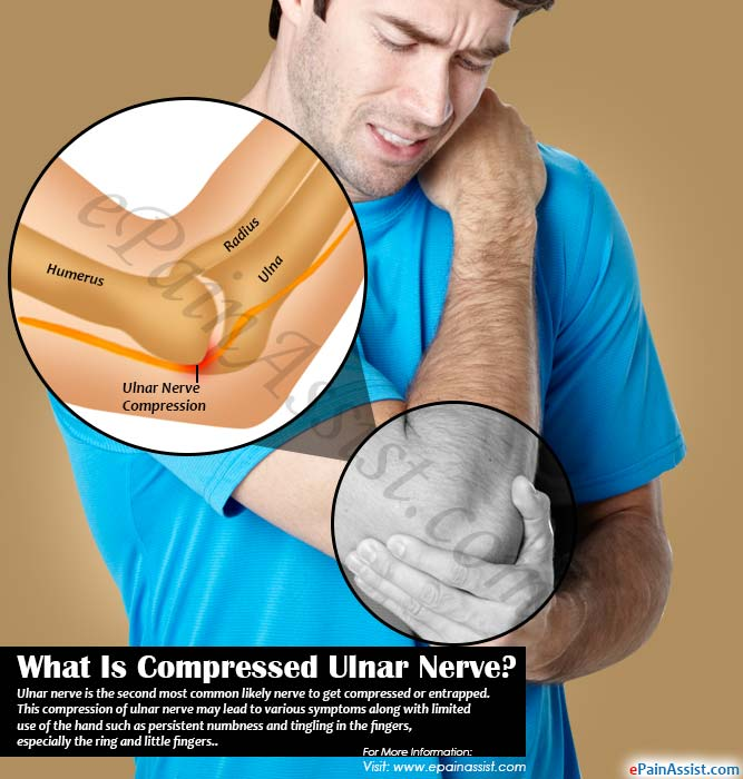 What Is Compressed Ulnar Nerve?