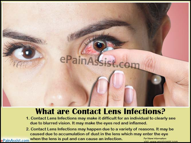 What are Contact Lens Infections?