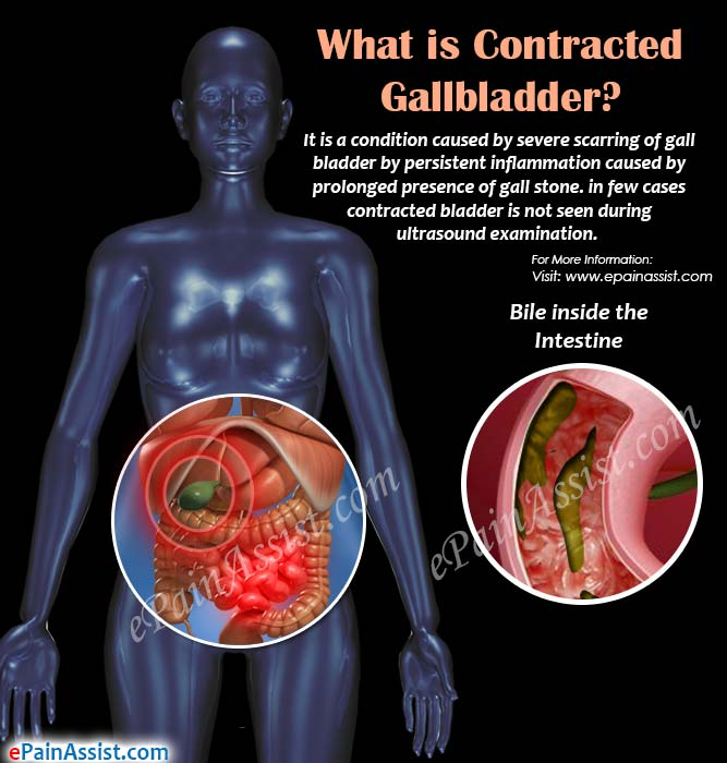 What is Contracted Gallbladder?