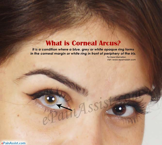 What is Corneal Arcus?