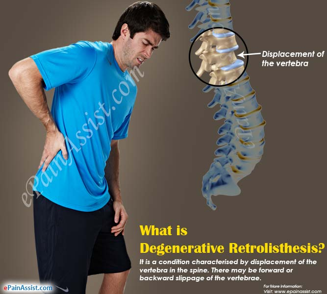 treatment of retrolisthesis Retrolisthesis is a relatively rare degenerative spinal disc condition that originates in the lower area of the spine the condition may cause lower back.