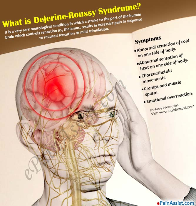 What Is Dejerine Roussy Syndrome Or Thalamic Pain Syndromecauses