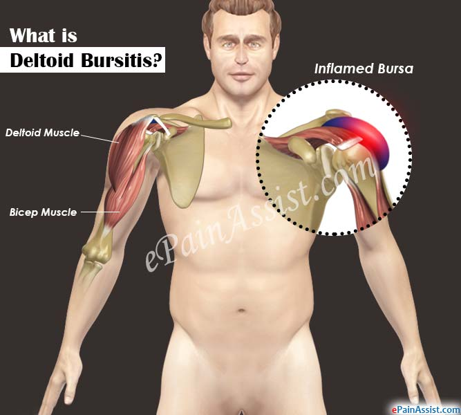 the symptoms and treatment of bursitis a typical joint injury