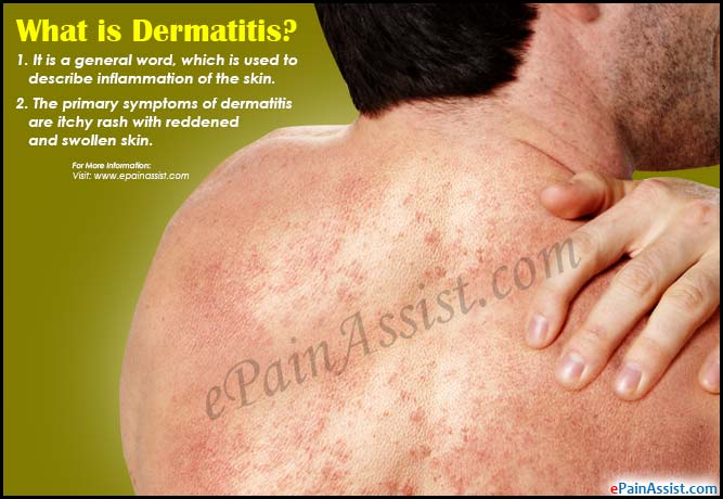 What is Dermatitis?