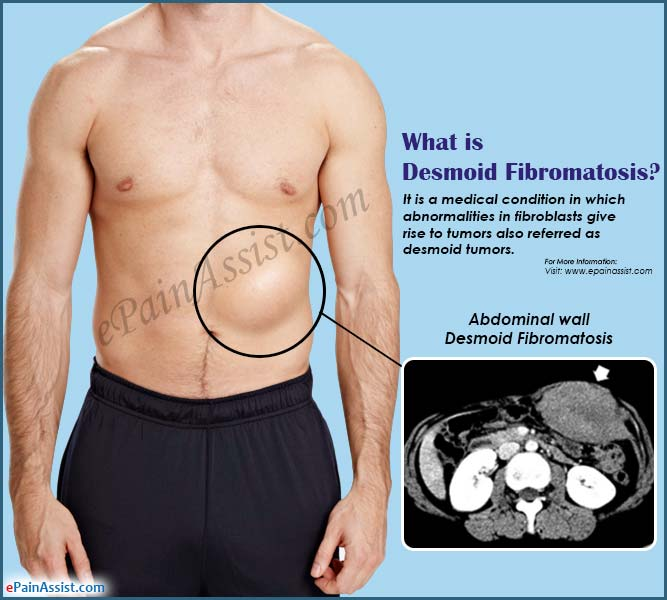 What is Desmoid Fibromatosis?