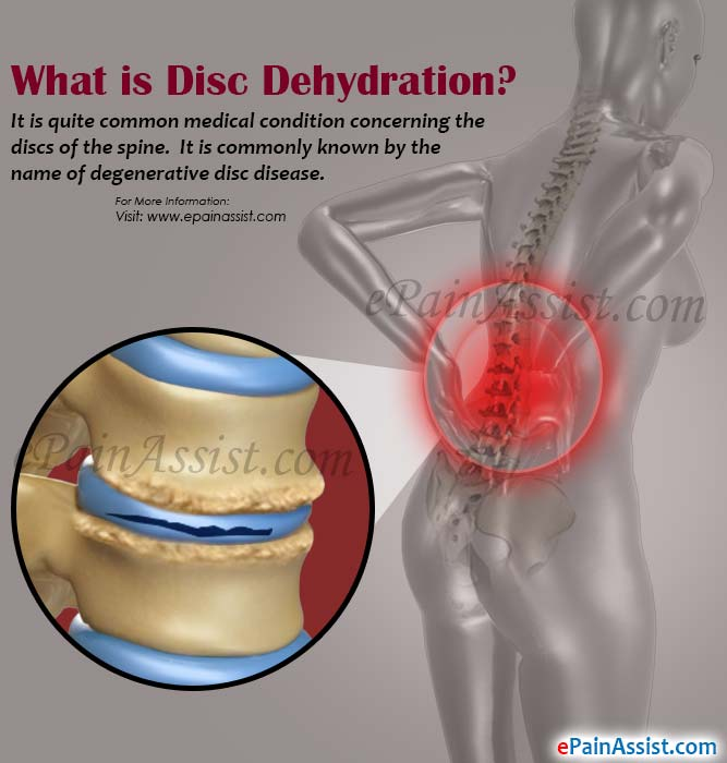 What is Disc Dehydration?