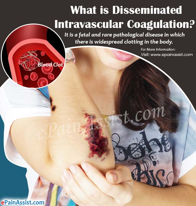 What is Disseminated Intravascular Coagulation?