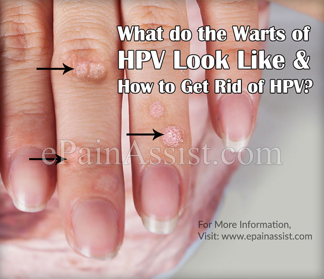 What do the Warts of HPV Look Like?