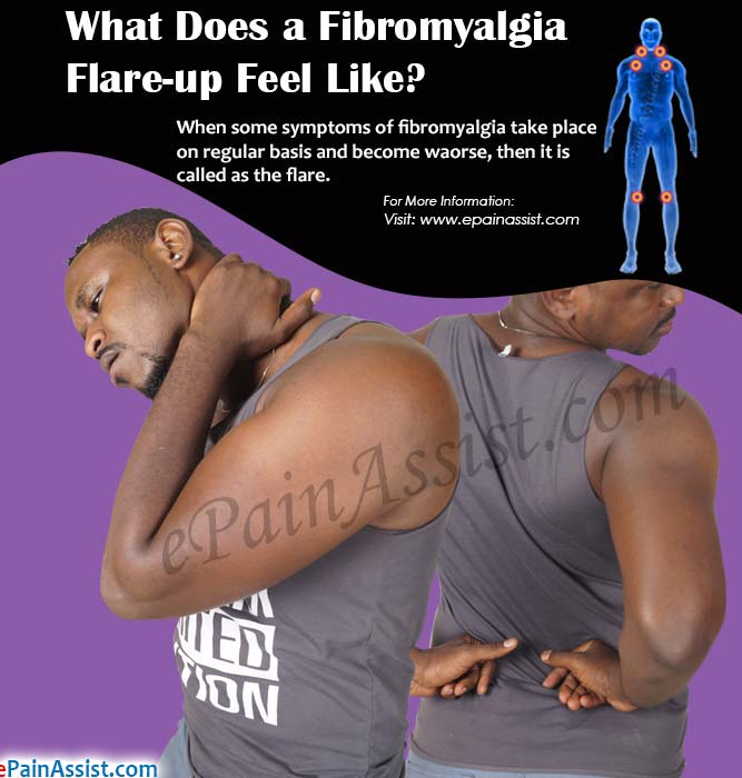 What Does a Fibromyalgia Flare-up Feel Like?