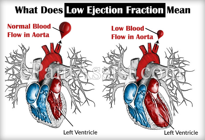 What Does Low Ejection Fraction Mean?